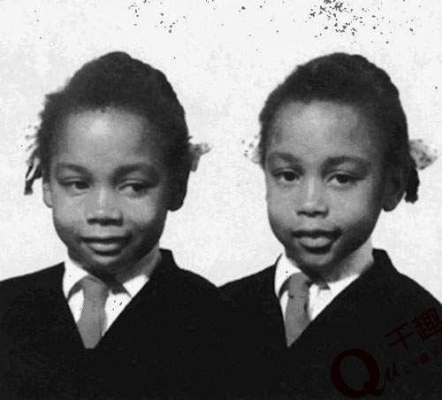 震惊欧洲的诡异双胞胎 最奇怪、神秘、特异功能双胞胎同步